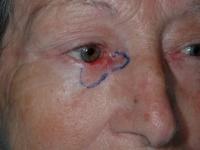 Tumor del párpado inferior en su sector nasal. Delimitación de su tamaño macroscópico. Esta zona se extirpa en forma completa.