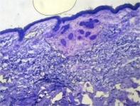 En este preparado se observa en la zona superior, debajo de la epidermis, varios cordones de carcinoma Basocelular (los acúmulos violáceos). Esos pequeños islotes son difíciles de identificar con otras técnicas