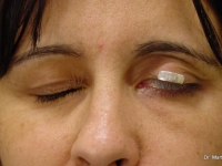 caso 3 Mejoría prevista con el implante de oro