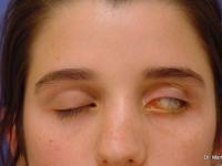 caso 1 Incapacidad para cerrar el ojo (lagoftalmos)