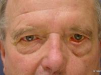 caso 2 Paralisis facial izquierda y ectropion párpado inferior