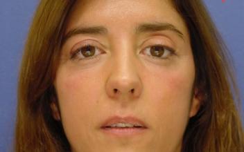 Después de descompresión orbitaria bilateral y cirugía de párpados