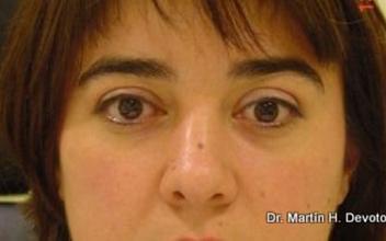 Pacientes después de descompresión orbitaria y cirugía de párpados