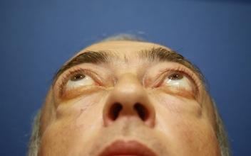 Pacientes antes de descompresión orbitaria y cirugía de párpados