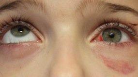 Dolor en la cuenca del ojo y el hueso de la ceja