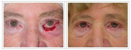 Si es posible ver las lombrices en el ojo