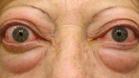 Enfermedad Tiroidea Ocular