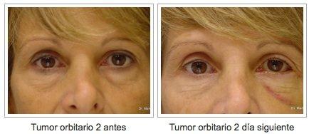 tumor de orbita