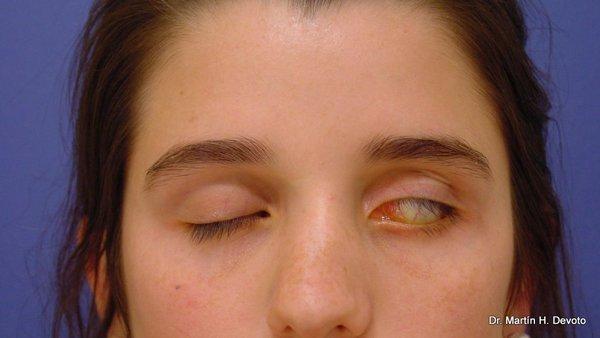 Incapacidad para cerrar el ojo (lagoftalmos)