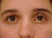 paralis facial