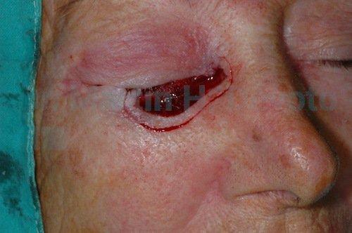 cirugía de mohs 02