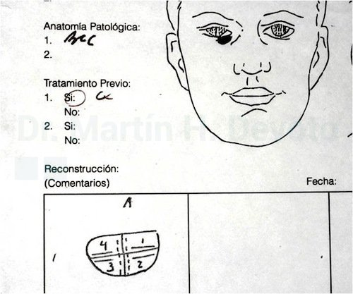 cirugía de mohs 05