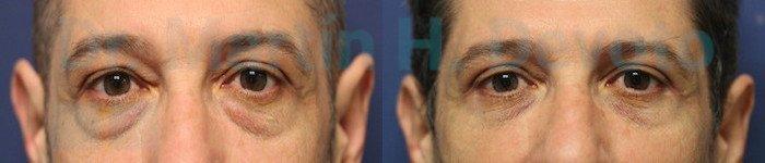 Cirugía de Párpados en Hombres 4.1