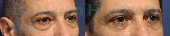 Cirugía de Párpados en Hombres 4.2