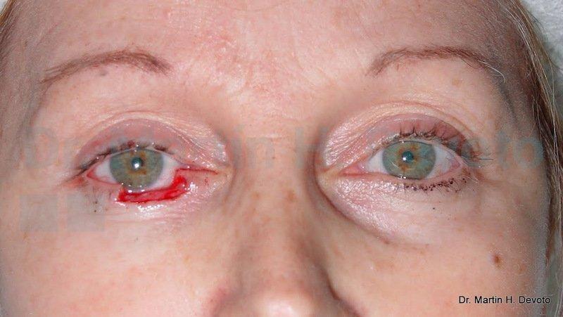 cancer de piel case 1_3