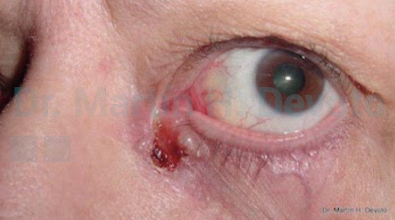 cancer de piel case 2_1