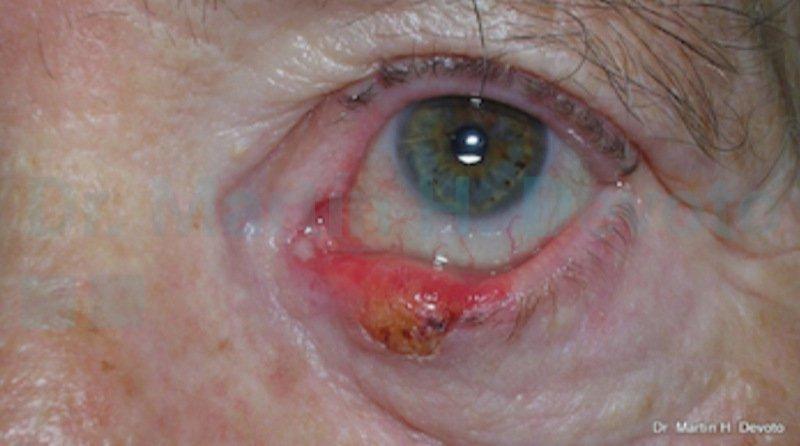 cancer de piel case 2_3