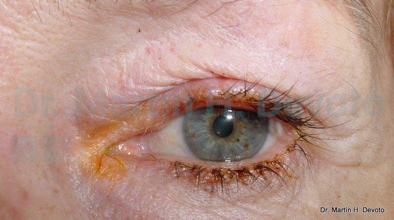 cancer de piel case 4_3