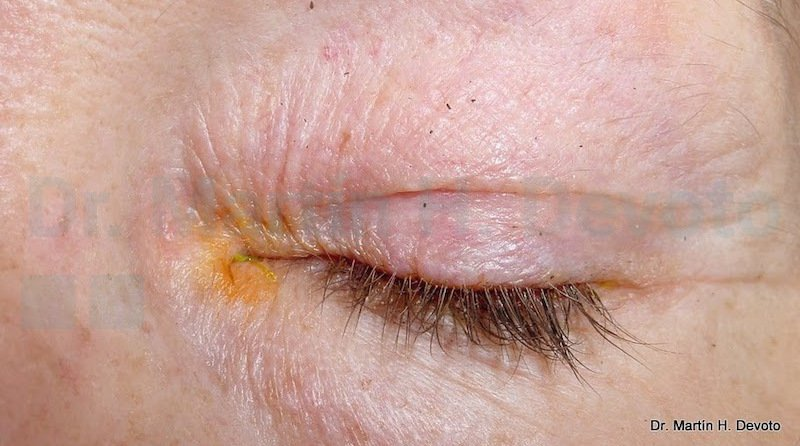 cancer de piel case 4_4