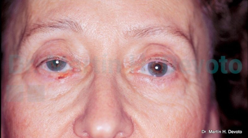 cancer de piel case 5_1