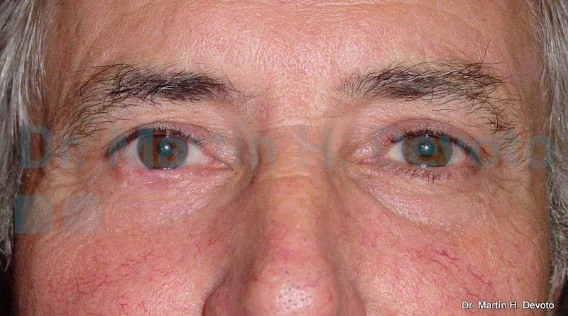 cancer de piel case 6_2