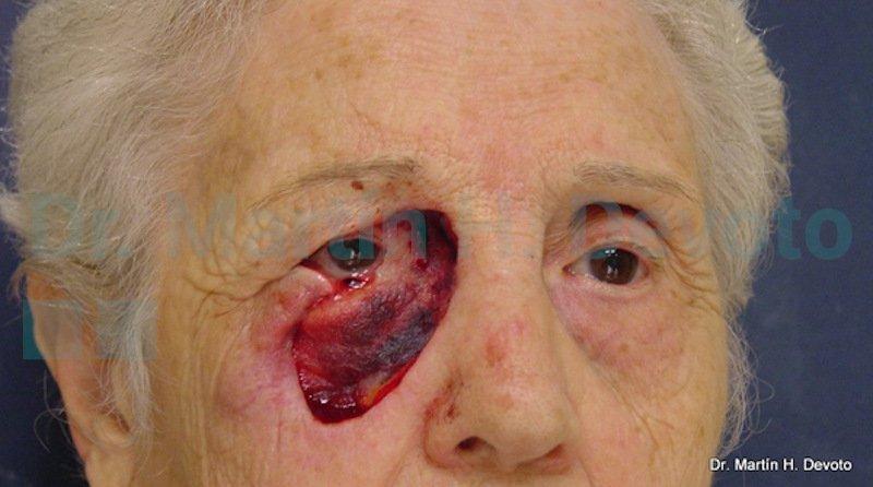 cancer de piel case 8_2