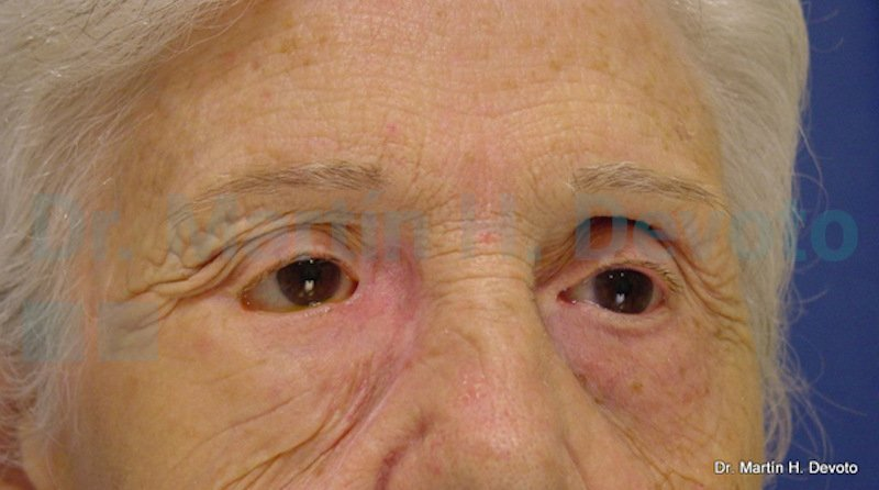 cancer de piel case 8_4