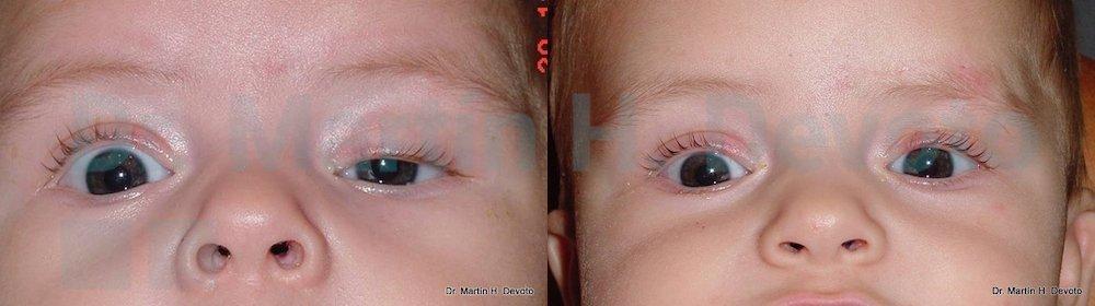 ptosis congenita 6