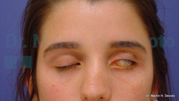 paralisis facial 1