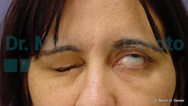 paralisis facial 14