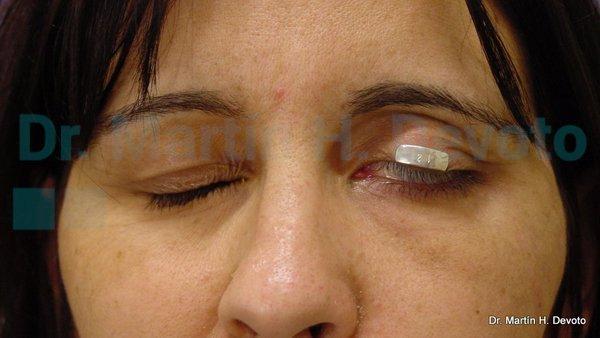 paralisis facial 16