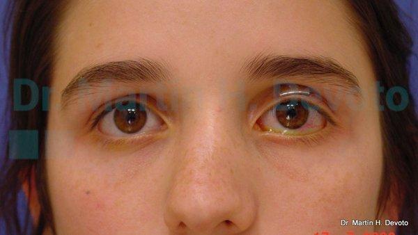 paralisis facial 2