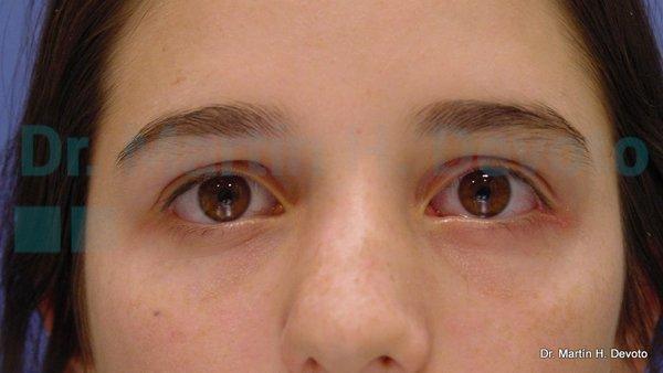paralisis facial 3