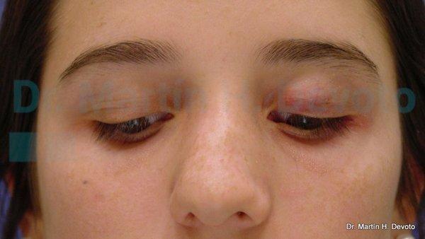 paralisis facial 4