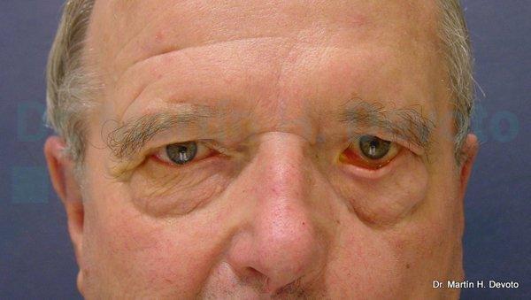 paralisis facial 6