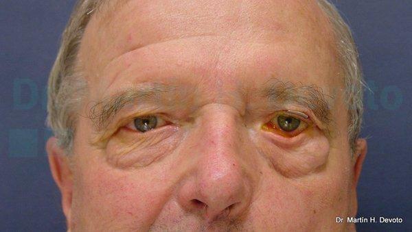 paralisis facial 8
