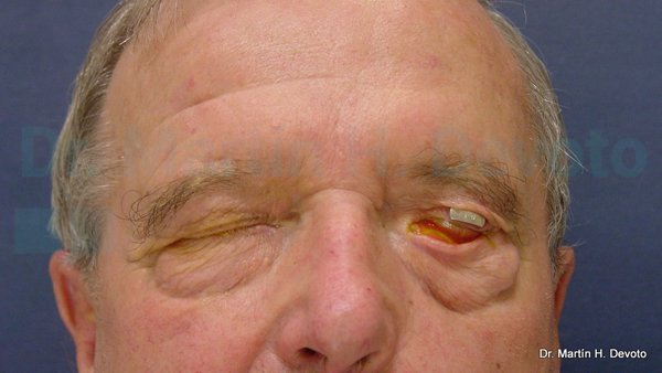 paralisis facial 9