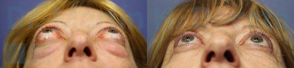 tiroides y ojos 2