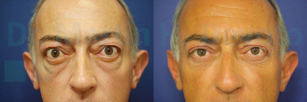 tiroides y ojos 3