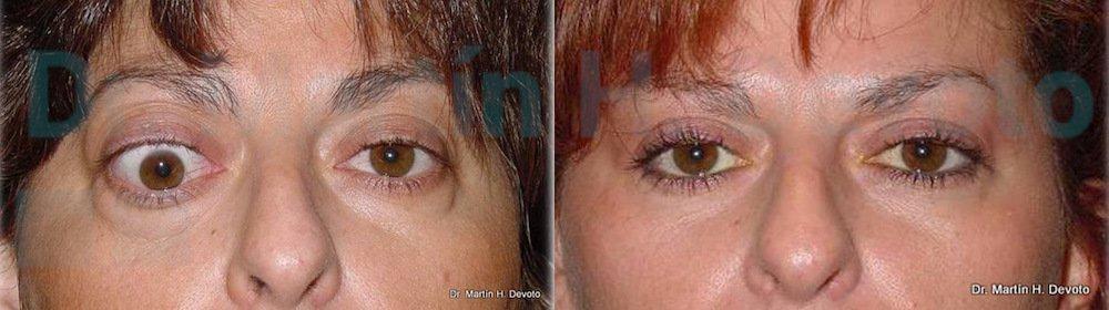 tiroides y ojos 6