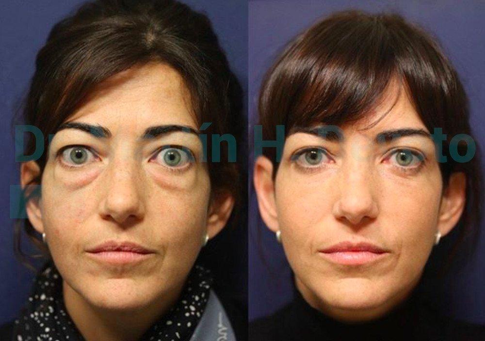 tiroides y ojos 1